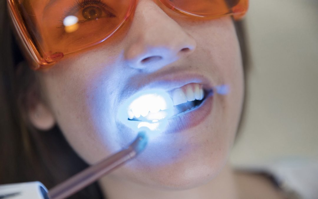 Teeth-Whitening: Dangers As A Client and Beautician